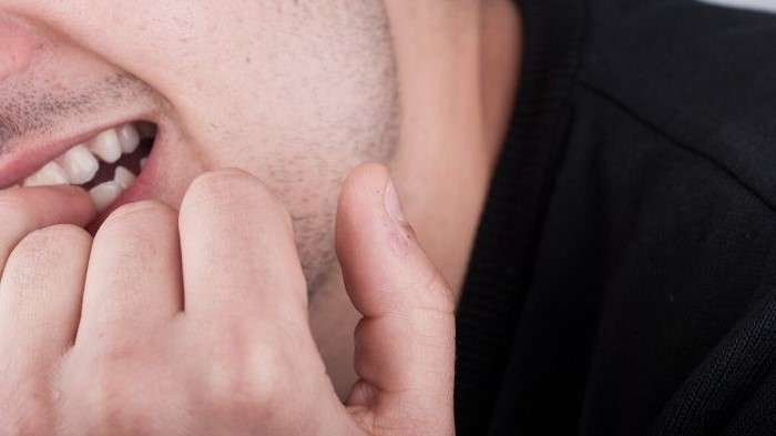 man is biting his nails, hypnosis for eliminating bad habits for adults in Vancouver BC