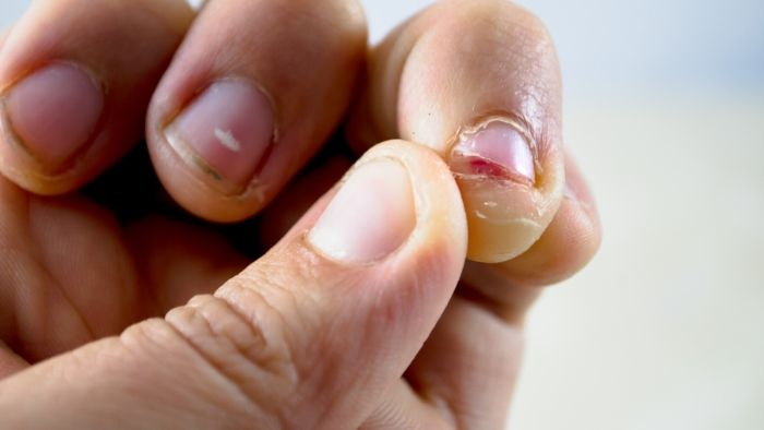 a person who is biting her or his nails, local and online hypnosis for nail biting Vancouver BC